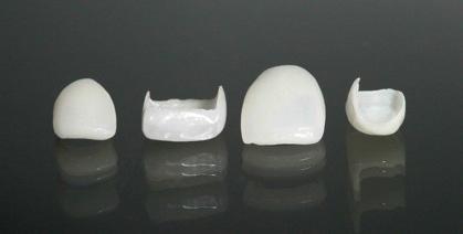 купить виниры для зубов в москве